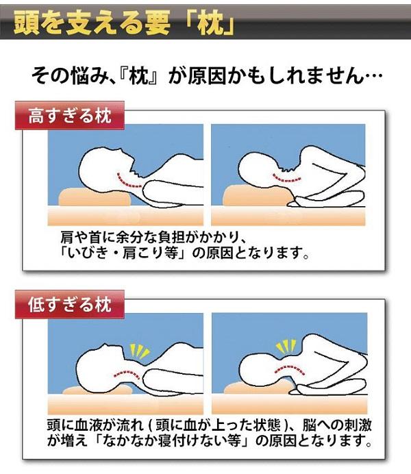 「寝違え 」の画像検索結果